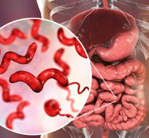 New Zealand commits to reduce Campylobacter foodborne illness by 20%