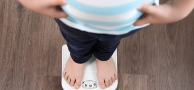 COVID-19 pandemic may exacerbate childhood obesity, experts warn